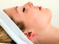 mulher fazendo sessão de acupuntura com agulhas