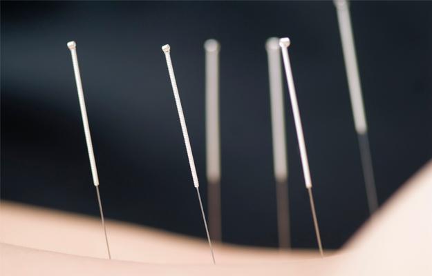 pessoa recebendo sessão de acupuntura