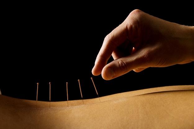Pessoa recebendo acupuntura para tratar hérnia de disco