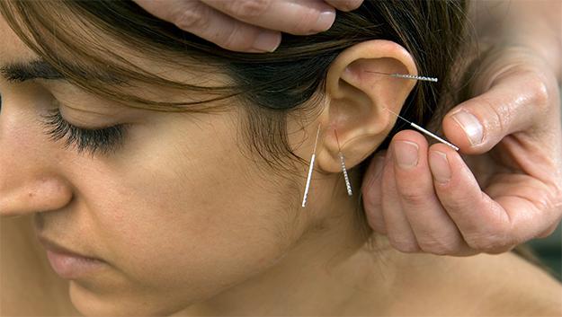 Mulher recebendo tratamento de auriculoterapia
