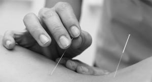 Homem aplicando acupuntura